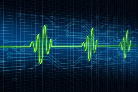 Cardiogram-000065812141_Large